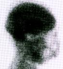 Normalbefund: der venös eingespritzte radioaktive Stoff zeigt die Durchblutung