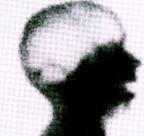 Hirntod: Da das Gehirn nicht mehr durchblutet wird, gelangt der radioaktive Stoff nicht ins Gehirn